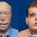 (Video) World's Most Complex Face Transplant Operation Made Possible with 3D Printing