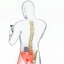 St. Jude Medical's Invisible Trial System Uses iPads to Control Pain Relieving Neurostimulator